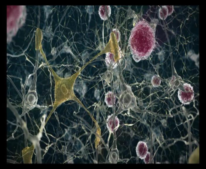 Sinirlerin Mikroskopik Görünümü